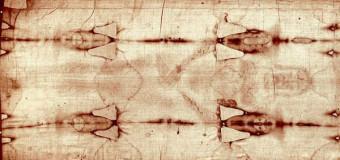 La Sacra Sindone, La flagellazione